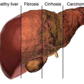Fatty-Liver-Cirrhosis